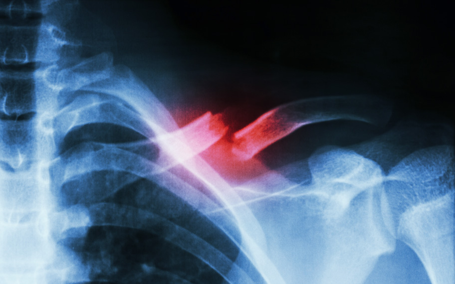 Bone Fracture Recovery Protocol:  Nutrition & Supplement Considerations